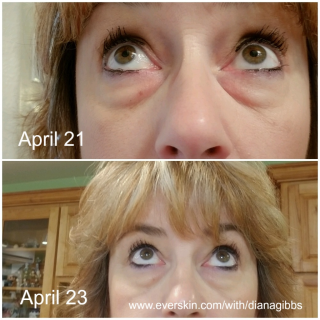 Before and after eye bags www.everskin.com/with/dianagibbs